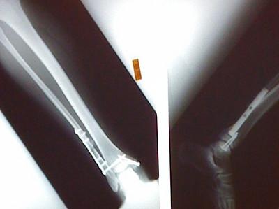 2009 08 06 - My Leg