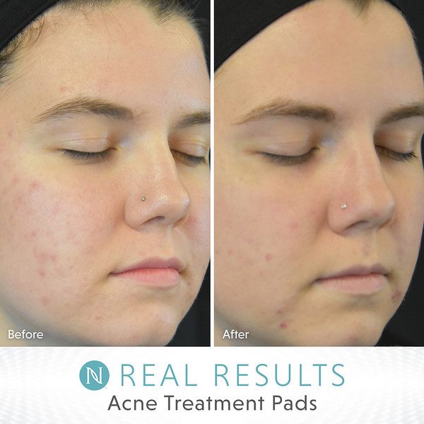 US-EN_Real-Results-Acne_5-19_V4.jpg