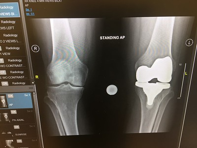 My new knees.
