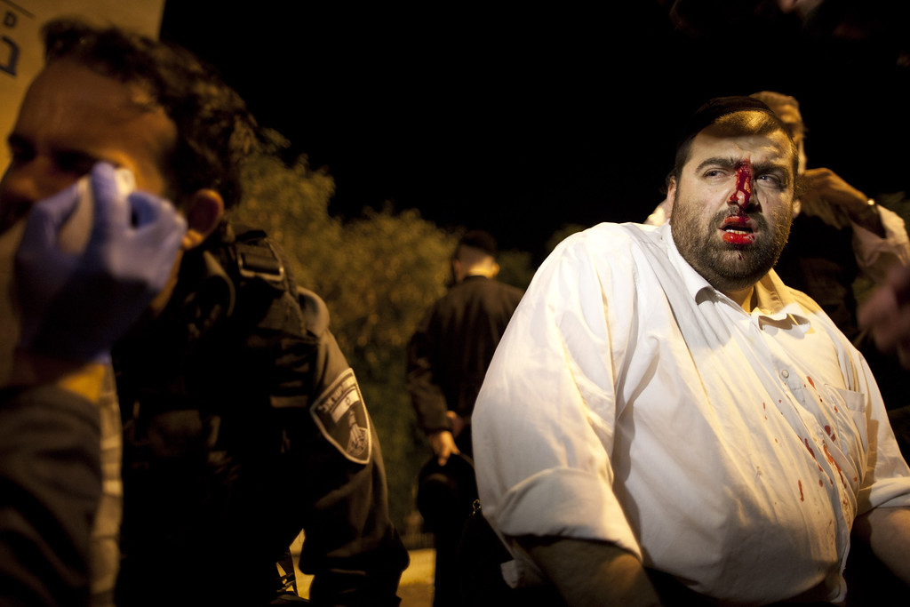 . JERUSALEM, ISRAEL - MAY 16:  A wounded ultra-Orthodox demonstrator is treated on May 16, 2013 in Jerusalem, Israel. Tens of Thousands of ultra-Orthodox Israelis have clashed with police after gathering to protest against newly proposed government legislation that would see them drafted into the military.  (Photo by Uriel Sinai/Getty Images)