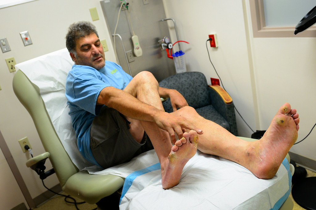 . Paul Vinci, who is diabetic, describes his foot ailments in the Amputation Prevention Center at Valley Presbyterian Hospital, Friday, August 8, 2014. (Photo by Michael Owen Baker/Los Angeles Daily News)
