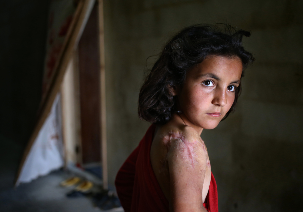 . In this picture taken on Thursday, May 29, 2014, Lujain Hourani, 11, a Syrian refugee girl who lost part of her shoulder in a government forces airstrike in the Syrian village of Zara, near Homs, stands outside her family room, at a collective center where many Syrian refugees live, in Kirbet Daoud village in Akkar north Lebanon. More than 1.1 million Syrian refugees are now living in Lebanon. Most of them are either excluded or will abstain from the June 3 presidential elections in Syria. Syrian authorities have said that only those who entered Lebanon legally could vote, effectively ruling out tens of thousands of refugees mostly opponents of Assad who crossed through unofficial border posts for fear of authorities. (AP Photo/Hussein Malla)