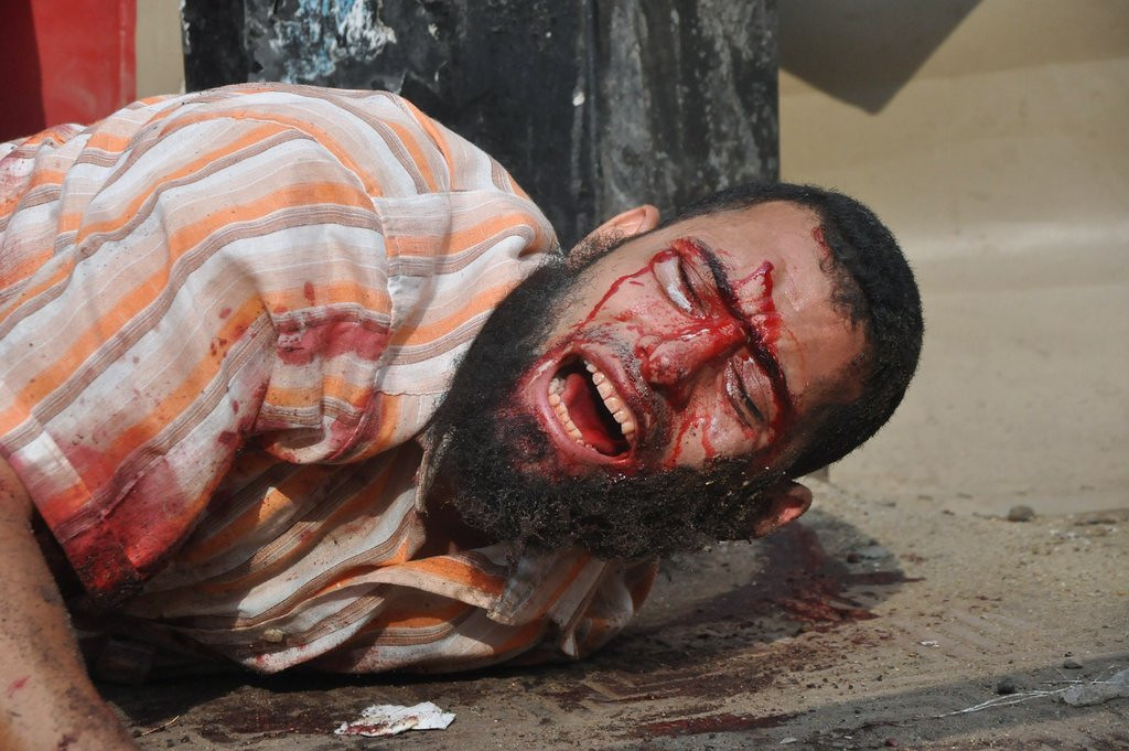 """. <p>8. EGYPT <p>You can�t make a good democracy without breaking a few eggs ... (unranked) <p><b><a href=\'http://www.twincities.com/breakingnews/ci_23859382/sky-news-says-cameraman-shot-dead-egypt\' target=\""""_blank\""""> HUH?</a></b> <p>   (AP Photo/Hussein Tallal)"""