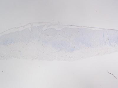 Large plaque mel on arm
