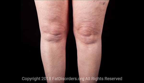 Lipedema6 #LipedemaAwareness @Fat_Disorders