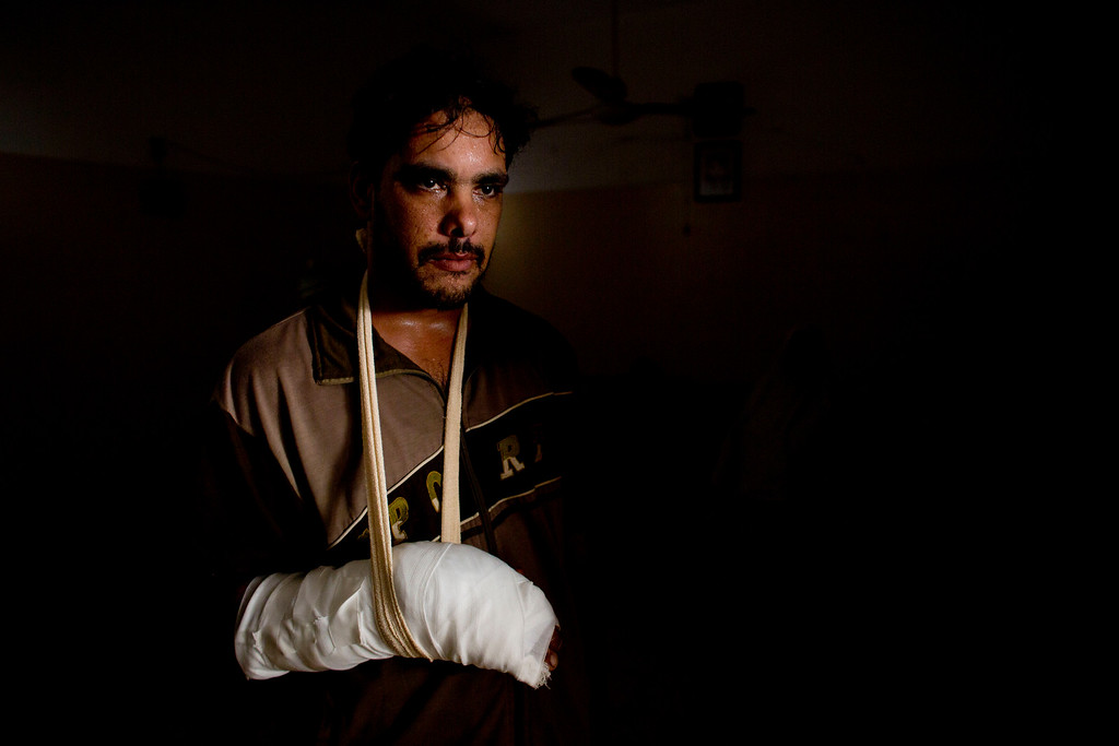 . In this photo made on Wednesday, Aug 6, 2014, Mohammed Younis, 31, stands in his family home in Gaza City. Mohammed was wounded on July 30, 2014 in the Shijaiyah neighborhood of Gaza City, and suffered multiple bone fractures to his arm and shrapnel wounds to his leg. More than 9,000 Palestinians, the majority of them civilians and nearly a third among them children, have been wounded in the month long Gaza war. (AP Photo/Dusan Vranic)