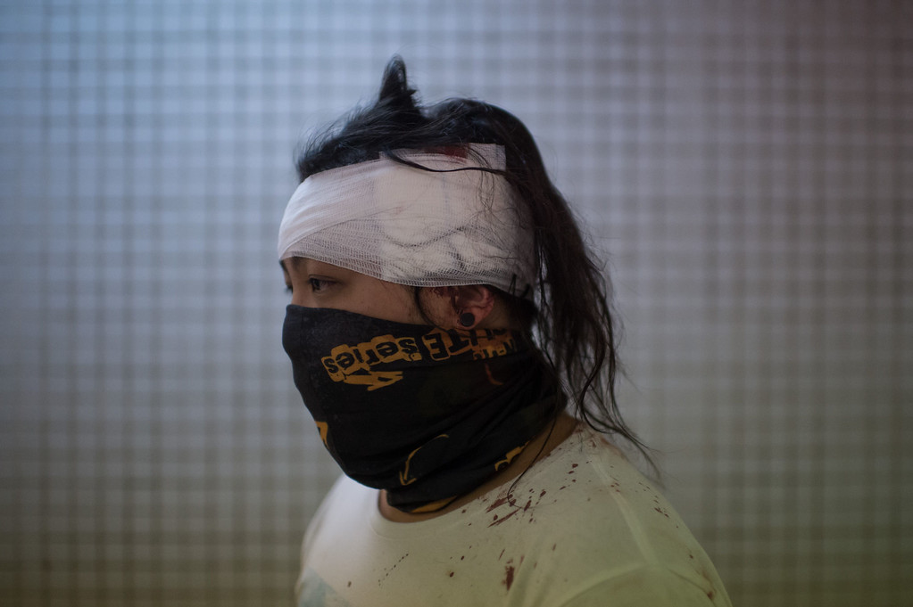 . A pro-democracy protester who gave his name as Jackie waits at a hospital to be treated for a head injury sustained during clashes with police in the Mong Kok district of Hong Kong early on October 19, 2014. AFP PHOTO / Ed JonesED JONES/AFP/Getty Images