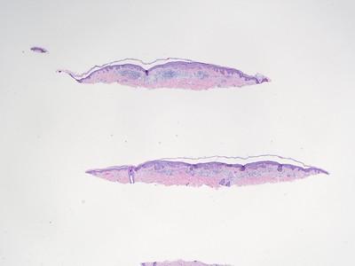 Dysp nevus DP17-7157 miRNA manus