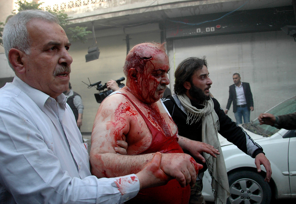 . Syrians help a wounded man following a car bomb explosion in al-Khudary Street in the Karm al-Loz neighbourhood of the central Syrian city of Homs on April 9, 2014. More than 150,000 people have been killed in Syria since the conflict began in March 2011, a monitoring group said in a new toll released. (AFP/Getty Images)