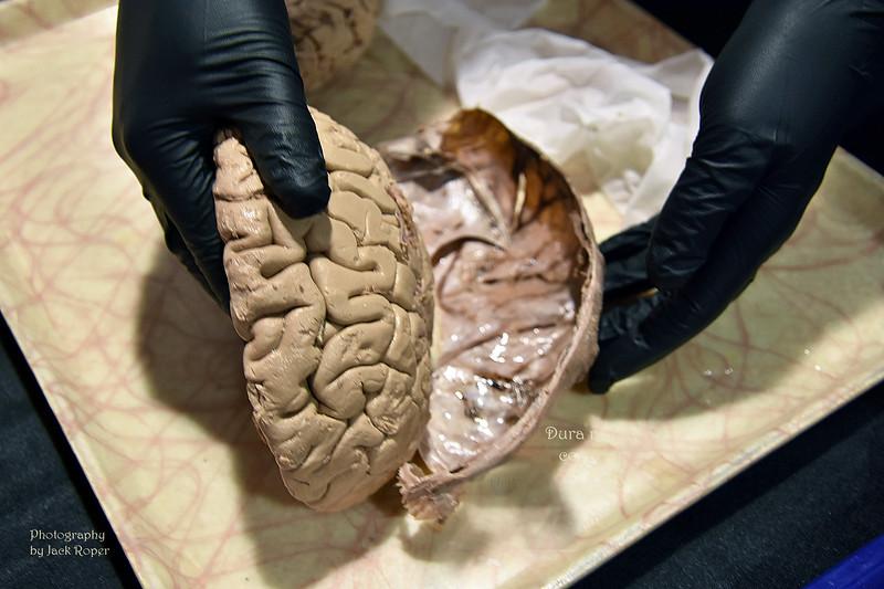 05  Human brain-Dura mater covering -jpg.jpg