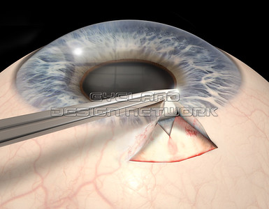 Glaucoma operation
