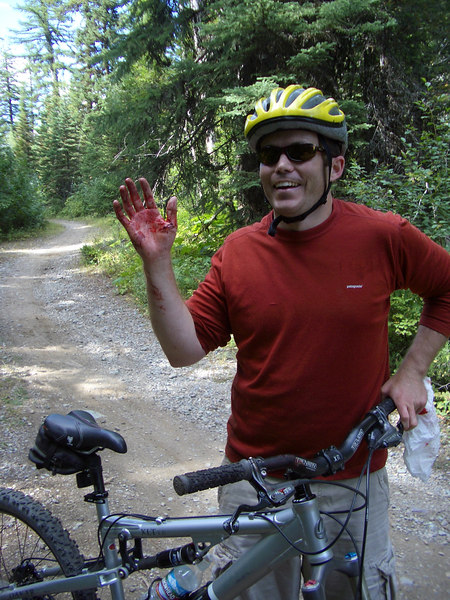 Braughm's carnage from the bike skills park. (5 stitches!)