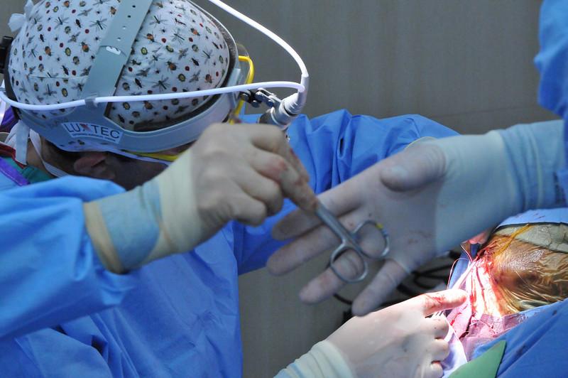 Case 32:  Miguel Antonio Lopez Guarchan. Surgery: VPS