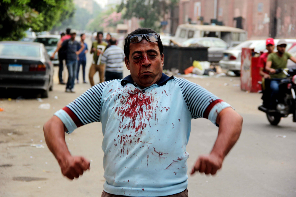 . An injured protester reacts during clashes between residents and Muslim Brotherhood members and Egyptian President Mohamed Morsi supporters outside Cairo University, on July 3, 2013 in Cairo.  President Mohamed Morsi refused to quit hours before an army ultimatum expires as deadly violence rocked Cairo during mass protests demanding he resign, in Egypt\'s worst crisis since its 2011 revolution.  MOHAMED EL-SHAHED/AFP/Getty Images