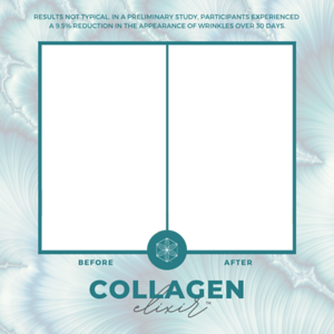 Collagen Elixir - Before & Afters