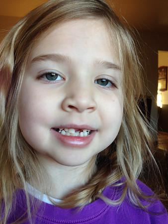 Lost Teeth