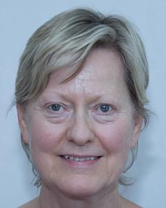 Bonnie Templeman