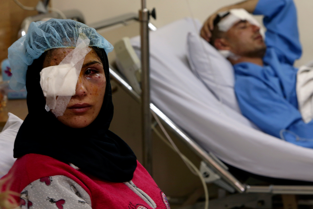 . A Lebanese woman, Ghadeer Mortada, 18, who wounded along with three members of her family, lies on a hospital bed next to her husband Hussein, 23, after a deadly car bomb exploded Saturday evening, in the predominately Shiite town of Hermel, about 10 miles (16 kilometers) from the Syrian border in northeast Lebanon, Sunday, Feb. 2, 2014. (AP Photo/Hussein Malla)