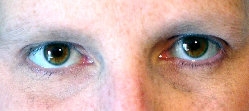 bright eyes53