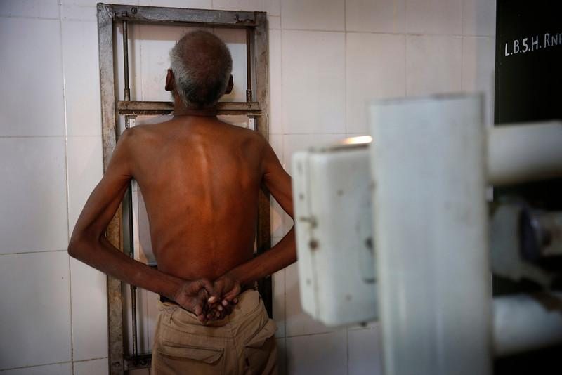 . In this Monday, Feb. 3, 2014 photo, an Indian man has an x-ray taken of his chest for diagnosis of tuberculosis (TB) at Lal Bahadur Shastri Government Hospital at Ram Nagar in Varanasi, India. (AP Photo/Rajesh Kumar Singh)