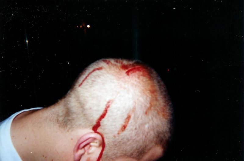 Somebody (Johnny) drops a loudspeaker on Johnny's head