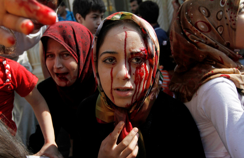 . FILE - Injured Syrian women arrive at a field hospital after an air strike hit their homes in the town of Azaz, on the outskirts of Aleppo, Syria, Wednesday, Aug. 15, 2012. (AP Photo/Khalil Hamra, File)