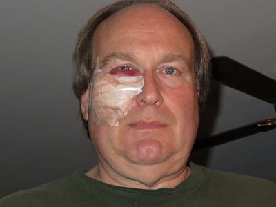 2017-11 Ray's Eye Surgery