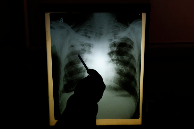 . In this Monday, Feb. 3, 2014 photo, senior chest physician Dr. A.K. Upadhaya looks at x-ray results of patient Shyam Lal, suspected to have tuberculosis (TB), at Lal Bahadur Shastri Government Hospital at Ram Nagar in Varanasi, India. (AP Photo/Rajesh Kumar Singh)