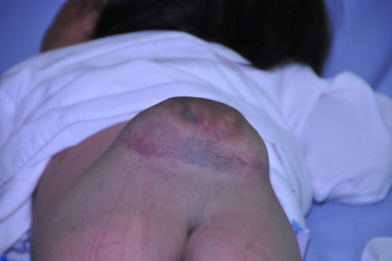 Case 63:  Mirna Maria Pantug Pu.  Remove Growth, VPS