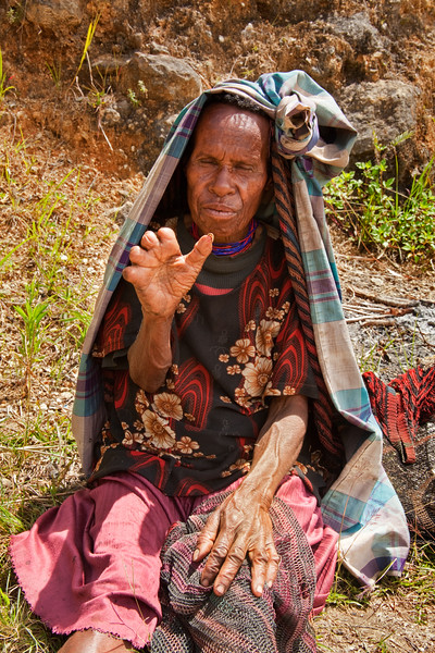In the traditional ways of the Dani people in West Papua, New Guinea, when a relative died, a woman would have a finger segment hacked off as a sacrifice to ensure good fortune for the relative in the afterlife. This lady appears to have had many family members pass on.
