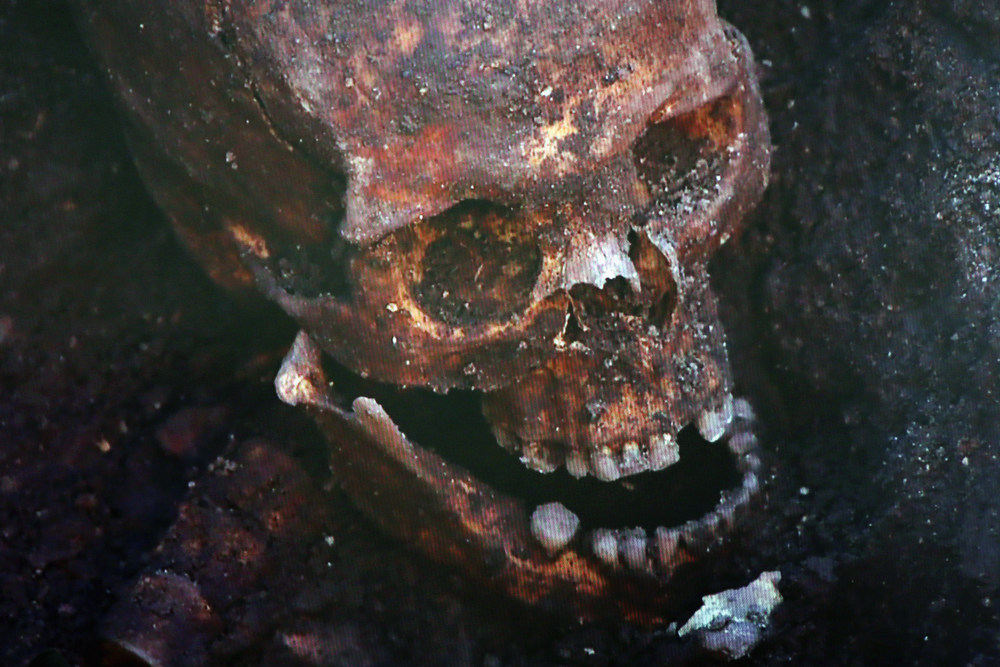 . A television screen displays the skull what is believed to be King Richard III during a press conference at Leicester University on February 4, 2013 in Leicester, England. The University of Leicester has been carrying out scientific investigations on remains found in a car park to find out whether they are those of King Richard III since last September, when the skeleton was discovered in the foundations of Grey friars Church, Leicester.  (Photo by Dan Kitwood/Getty Images)