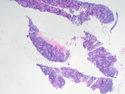 Sarcoidosis nodal s17-3339