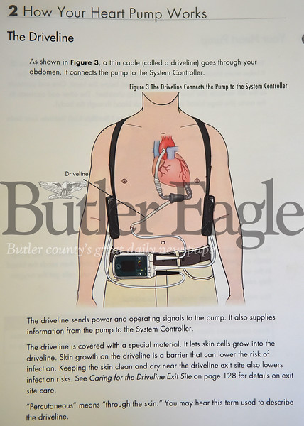 48744 George Rock has an LVAD heart pump