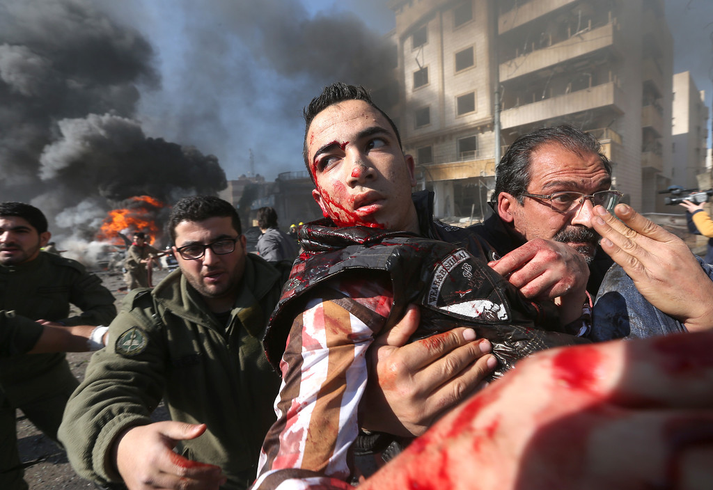 . A wounded Lebanese man is carried from the site of an explosion, in the suburb of Beir Hassan, Beirut, Lebanon, Wednesday Feb. 19, 2014.  (AP Photo/Hussein Malla)