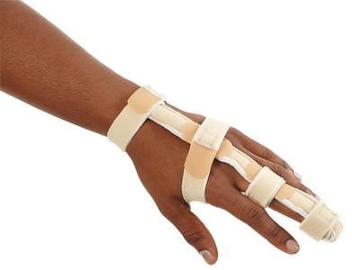 Splints and Fracture Management
