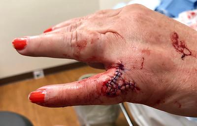 2018 05 08 Mom's Serious Hand Injury