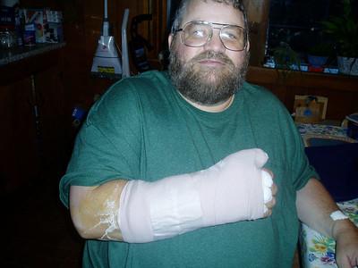 Wrist reconstruction