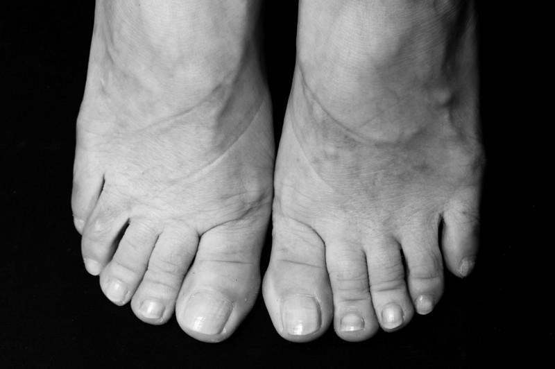 Ladies Feet