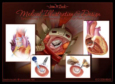 Joan Beck Medical Illustration portfolio