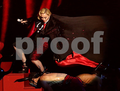 madonna-hit-her-head-got-whiplash-in-brits-stage-tumble