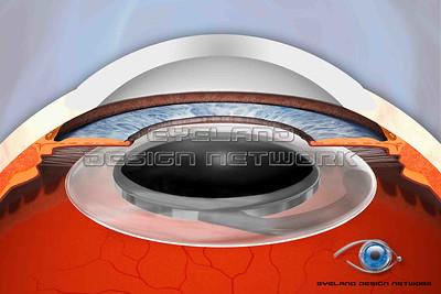 Cataract operation