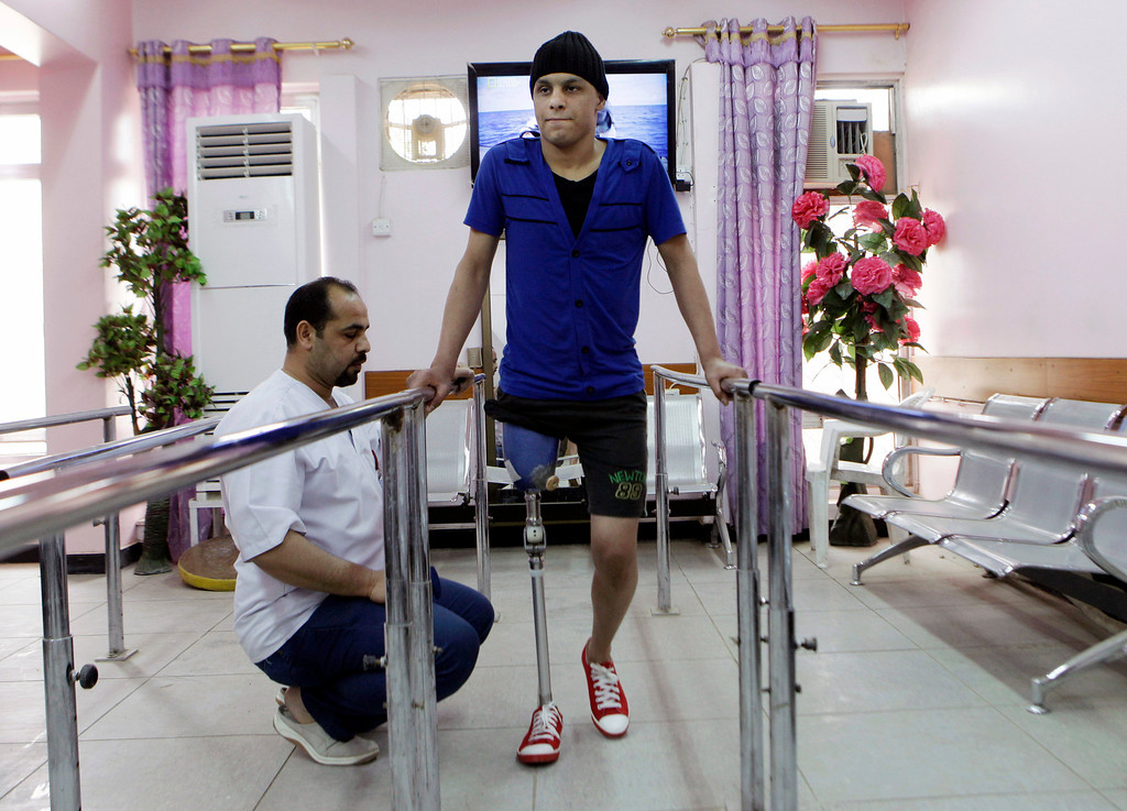 . Hassan karim, tries his new prosthetic leg at the prosthetic limbs hospital in Baghdad, Iraq, Tuesday, April 9, 2013. The toppling of the longtime dictator Saddam Hussein, cast as 16 feet of bronze statue remains a potent symbol that has divided Iraqis ever since: liberation for Shiites and Kurds, a loss for some Sunnis and grief among almost everybody over the years of death, destruction and occupation that followed the fall of the capital to U.S. forces on April 9, 2003. (AP Photo/ Khalid Mohammed)