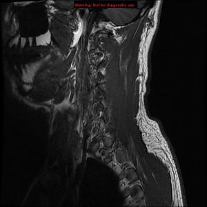 3T Cervical Spine
