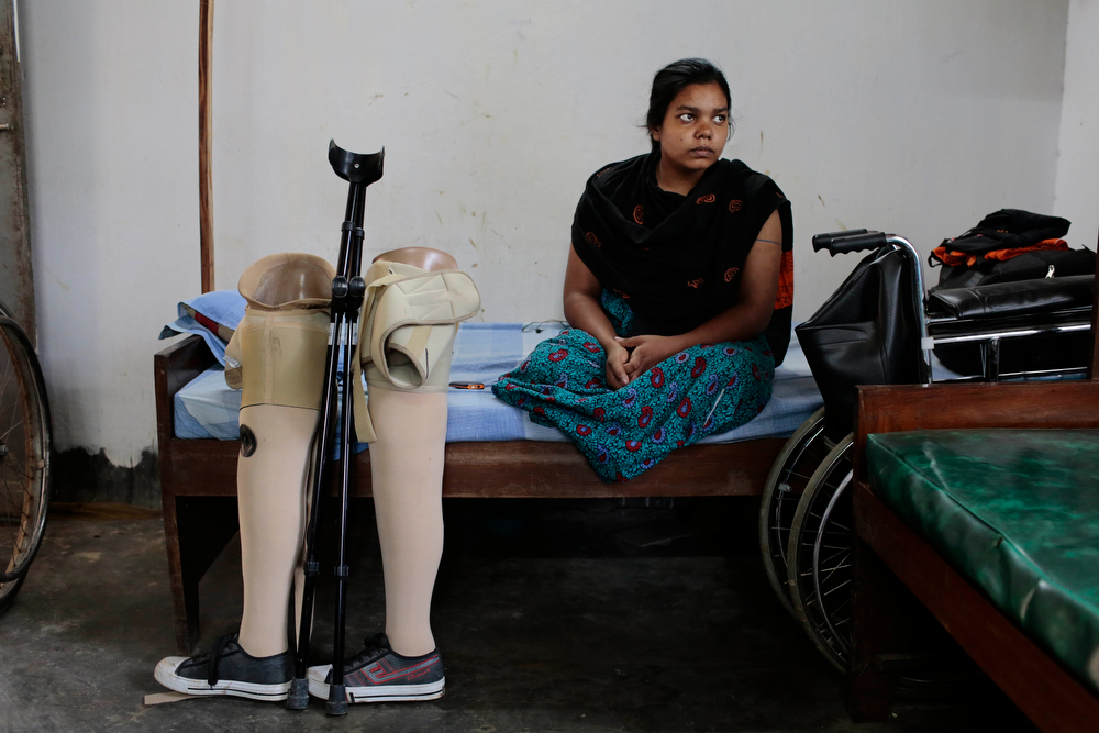 . In this Monday, April 21, 2014 photo, Bangladeshi garment worker Rehana, who worked on the 4th floor of the Rana Plaza garment factory that collapsed, sits with her artificial legs standing beside her bed at a hospital in Savar, near Dhaka, Bangladesh. At least 1,135 people were killed when the illegally constructed, 8-story building collapsed April 24, 2013, in a heap along with thousands of workers in the five garment factories in the building. Rehana lost her legs in the accident. (AP Photo/A.M. Ahad)
