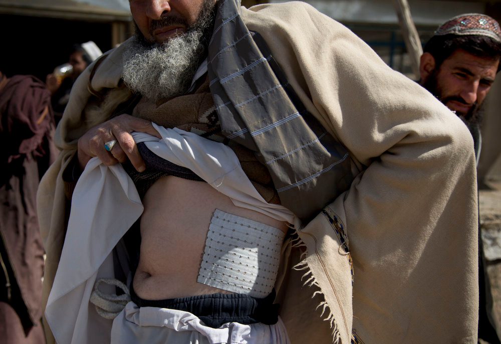 . Habib Noor, shows a plaster on his body, from two U.S. Special forces and their Afghan translator named Zikrya who beat him he said, in Maidan Shahr, Wardak province, Afghanistan, Sunday, March 10, 2013. Afghan President Hamid Karzai, infuriated by villager reports of forced detentions and mass arrests, gave U.S. Special Forces two weeks to vacate Wardak province, located barely 30 kilometers (24 miles) from the Afghan capital of Kabul. The deadline for their withdrawal expired midnight Sunday, March 10, 2013. (AP Photo/Anja Niedringhaus)