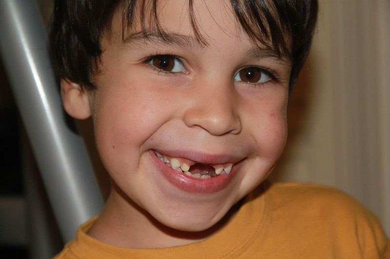 Tooth Fairy - Marco 2010 (2 of 2).jpg
