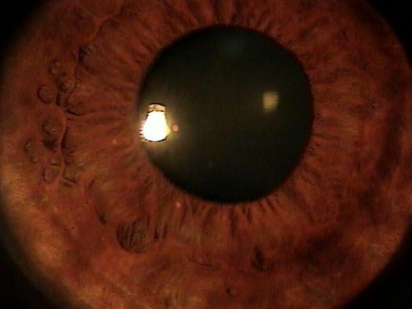 My eyes! 003.jpg