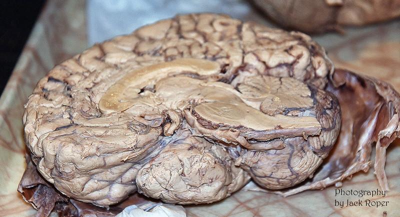 07  Brain cross section _3484.jpg