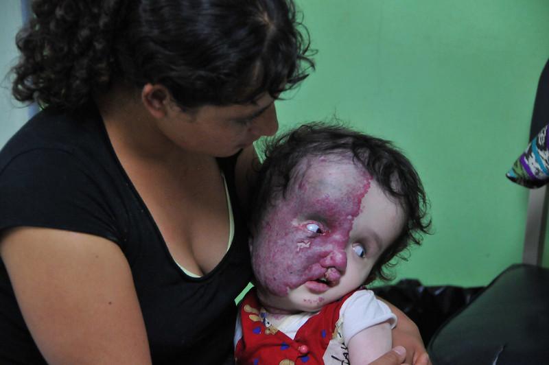 Case 46:  Jeilin Dayana Rosalies. Surgery: L VPS