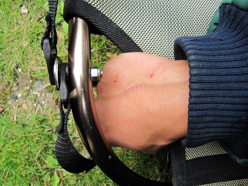 Wounds on my hand from having to move the seat back in position several times when sailing.